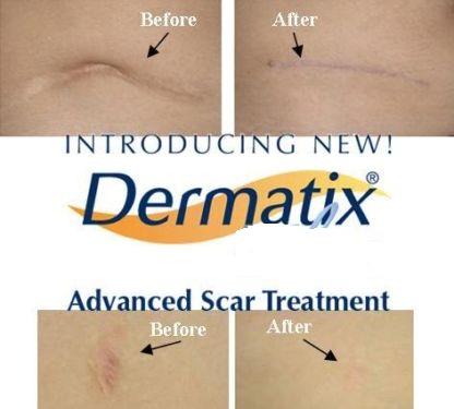 Kem Hỗ Trợ Trị Sẹo Dermatix Của Mỹ