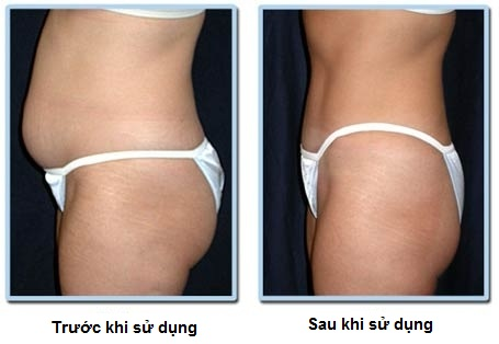 Kem Tan Mỡ Thorakao- Đánh Tan Mỡ Thừa