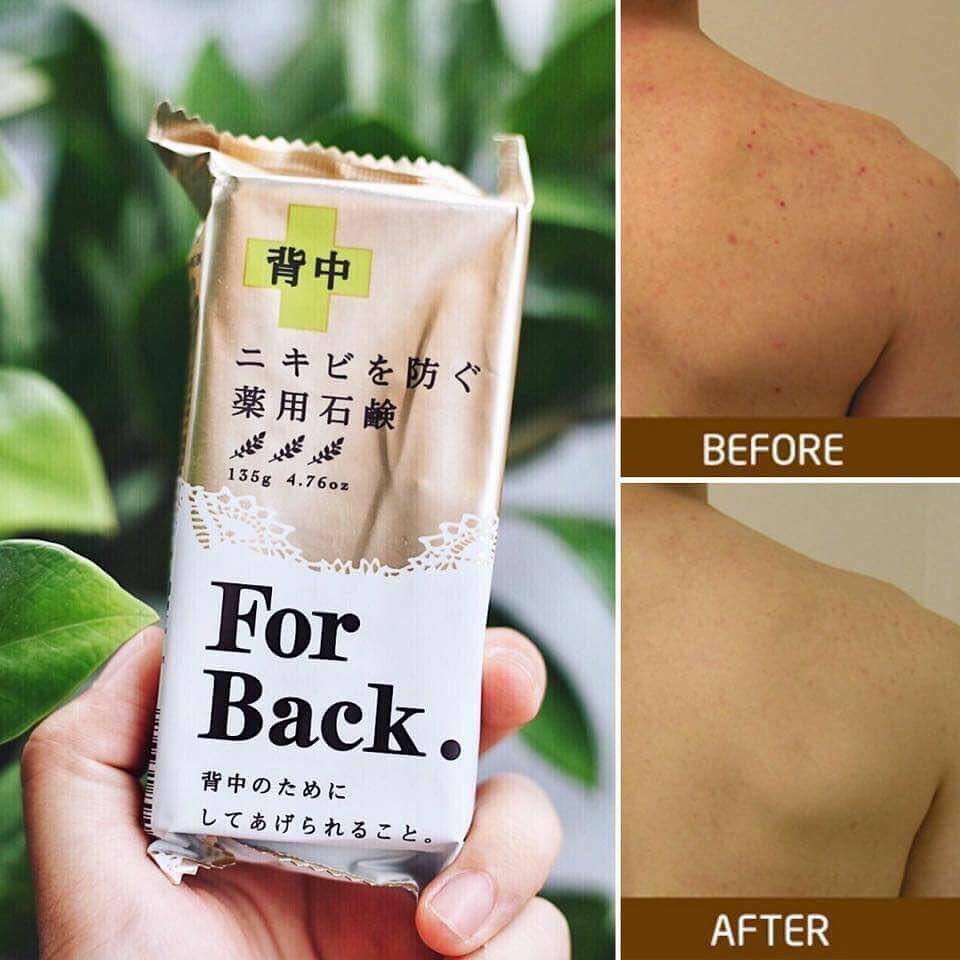 Xà Phòng Trị Mụn Lưng For Back Medicated Soap Của Nhật
