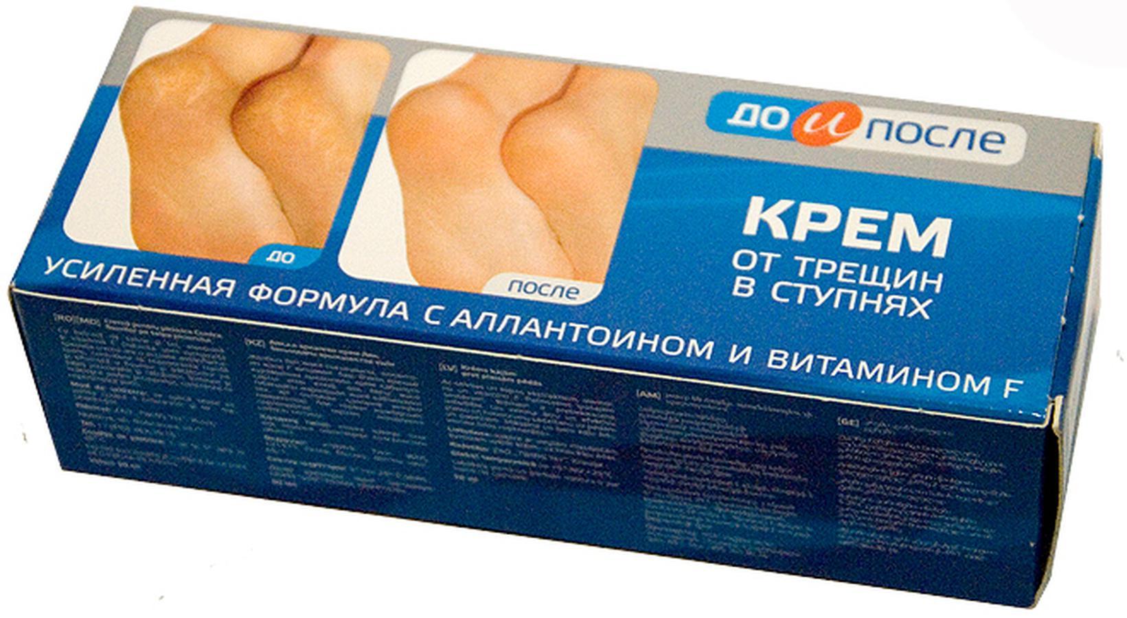 Kem Trị Nứt Gót Chân Nga Kpem Apteka Vitamin F 50ml