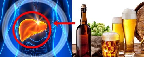 Viêm Gan Do Rượu: Căn Bệnh Nguy Hiểm Đừng Xem Thường