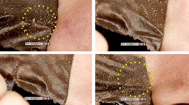 Gel Lột Mụn Pore Remodeling Mask Mua Ở Đâu? Cách Sử Dụng Hiệu Quả?