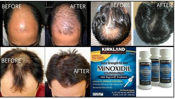 Minoxidil Dùng Có Hiệu Quả Không? Phụ Nữ Mang Thai Dùng Được Không?