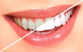 Bàn Chải Đánh Răng Điện Có Ưu Điểm Gì? Tại Sao Chuyên Gia Khuyên Bạn Nên Dùng?