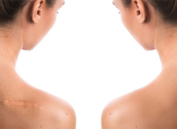 [Tips] Chuyên Gia Lý Giải Vì Sao Nên Dùng 'scar Rejuvasil'? & Đánh Giá Từ Người Dùng
